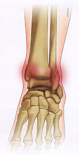 Fracturas de pie y tobillo